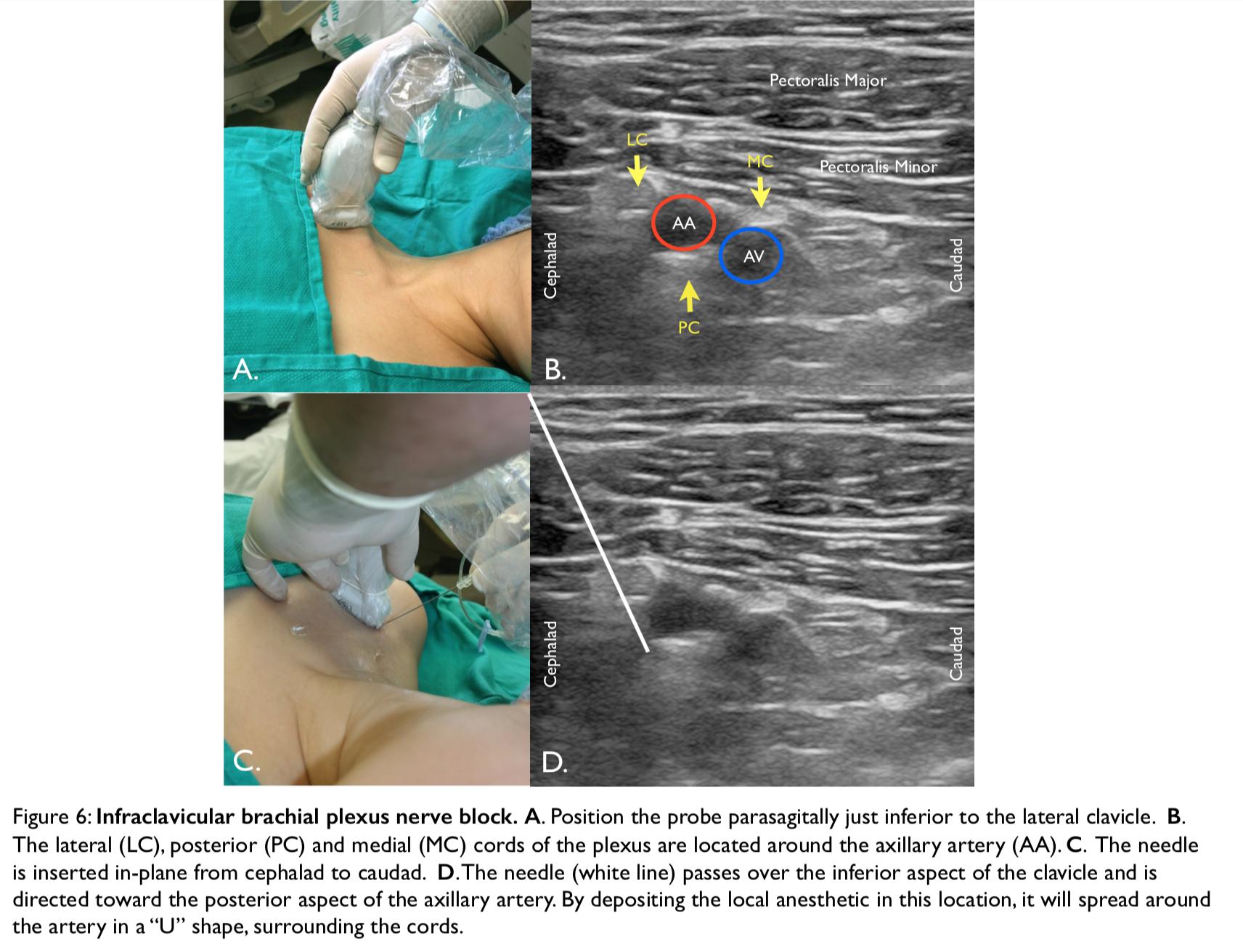 Ultrasound-Guided Regional Nerve Blocks in Emergency